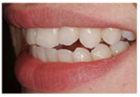 after inman aligners